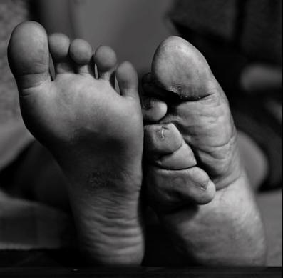 essay on foot binding